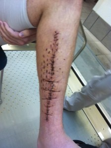 Incision before aquatic therapy