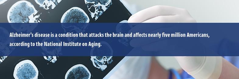 How Alzheimer's Effects the Brain